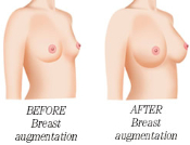 Breast Augmentation or Revision